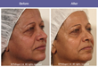 TriPollar Technology: Wrinkle reduction & firming Courtesy of Dr. Amos Leviav – Tel Aviv, Israel