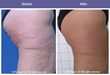 TriPollar Technology: Thigh Skin Tightening & cellulite reduction  Courtesy of Prof. Dvora Ancona – Milan, Italy