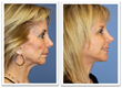 Before and After Photo Lower Face Lift Neck Lift Fat Grafting Filler Cosmetic Surgery Board Certified Plastic Surgery Orange County Newport Beach California Facial Rejuvenation