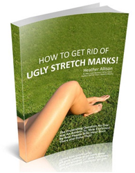 how to get rid of ugly stretch marks order
