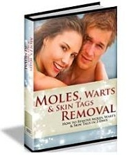 moles, warts, and skin tags removal order