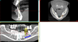 Ueno Periodontics Offers New Digital Dental Implant Procedure