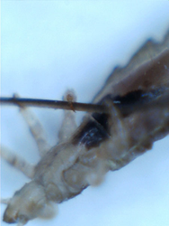 Head Louse Attached to Human Hair