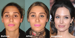 Angelina Jolie Nose Job Surgery