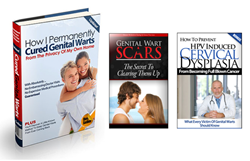 5 day genital wart eradication review