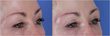 Brow Augmentation is Becoming Frequently Requested Procedure at Visage...