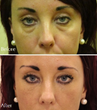 Before and After SkinViva Treatment