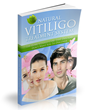 Natural Vitiligo Treatment System Review Reveals Home Vitiligo Healing...