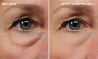 Visage Sculpture, Premier Cosmetic Clinic of Boston, Now Offers Neotensil- New Product That Helps to Dramatically Reduce the Appearance of Under-Eye Bags
