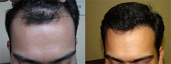 Bay Area Hair Restoration