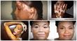 vitiligo miracle book