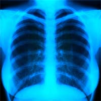 Pleural Effusions and Mesothelioma