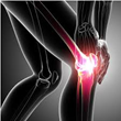 Zimmer NexGen Knee Implant Multidistrict Litigation Moves Forward:...