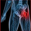 New DePuy Hip Implant Lawsuit Alleges Pain and Suffering: Now,...