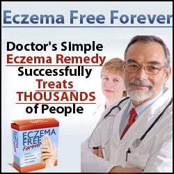 Eczema Free Forever Review | How To Eliminate Eczema Permanently And Naturally