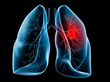 Affordable Term Life Insurance Rates for Clients Who Have Lung Cancer