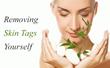 Remove Skin Tags Without Surgery with Revitol Skin Tag Remover Now...