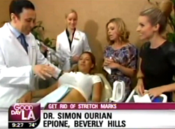 Dr. Simon Ourian Treats Stretch Marks on Good Day L.A.