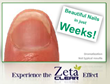 Zeta Clear For Healthy And Clear Nails, Now Available with 1 Extra...