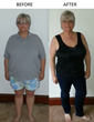 Bariatric Patient Travels to Mexico for Gastric Sleeve Surgery with...