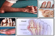 The Gout Remedy Report Review Reveals The Secrets To Eliminate Gout Naturally