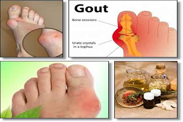 carisoprodol for gout