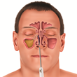 Balloon sinus dilation procedure, illustration of balloon inflated in sinus pathway