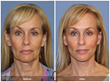 Lower Face & Neck Lift performed in-office, under local anesthesia Actual Patient Before and After Photo Facelift Facial Plastic Surgeon Plastic Surgery Orange County No general anesthesia.