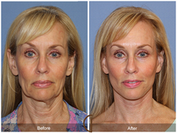 Actual Patient's Before and After Photo from Dr. Kevin Sadati's Natural Lift, a Lower Facelift and Neck Lift Performed Under Local Anesthesia and Oral Sedation - No General Anesthesia Needed. One of Orange County's top facial plastic surgeons.