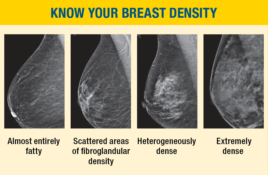 Dense breast tissue: What it means to have dense