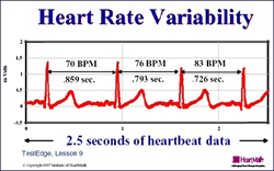 heart rate variability, heart rate monitors, heart rate watch company