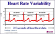 Heart Rate Monitors That Measure Variability Key Says New HRWC Study