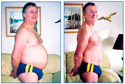 Peter Oelmann Before and after picture