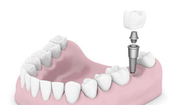Illustration of a Dental Implant, Abutment, and Restoration