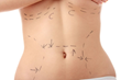 Find Tummy Tuck Surgeons Offers New Website to Patients Seeking...