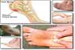 Plantar Fasciitis Secrets Revealed Review | How To Treat Plantar Fasciitis Effectively