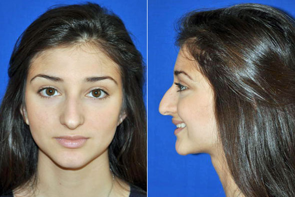 Now In Boston Botox And Dysport Are Used To Change The