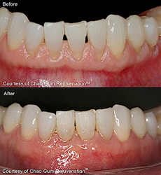 Teeth Before-After Chap Pinhole Gum Rejuvenation