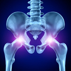 DePuy Hip Lawsuit