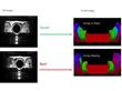 Coherix Tru3D™ Assembly Verification/Error Proofing Technology...