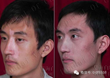 Compared photos of Zhao lei