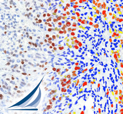 companion diagnostics and digital pathology tissue analysis