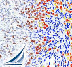 companion diagnostics and digital pathology tissue analysis