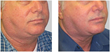 Exilis Non Invasive Wrinkle Reduction and Non Surgical Fat Reduction...