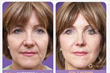 juviderm,juviderm voluma,liquid face-lift,non-surgical wrinkle filler, non-surgical face-lift,surgical facelift,anti-aging treatments