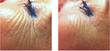 exilis eye area