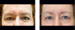 Exilis before and after of the eyes