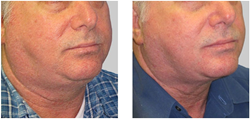 Exilis Chin and Neck
