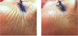 exilis treatment eye area