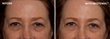 """Send Those (Under Eye) Bags Packing; Introducing Neotensil™, the First Liquid """"Spanx"""" for Your Eyes"""